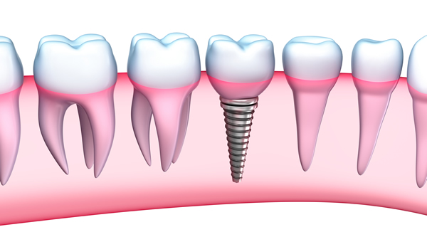 dental implants in  Limavady